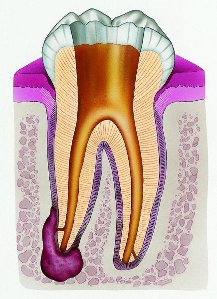 На картинке изображен зуб в разрезе и киста у его основания.