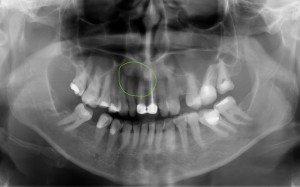 На фото рентгеновский снимок. На месте предполагаемой кисты присутствует затемнение.