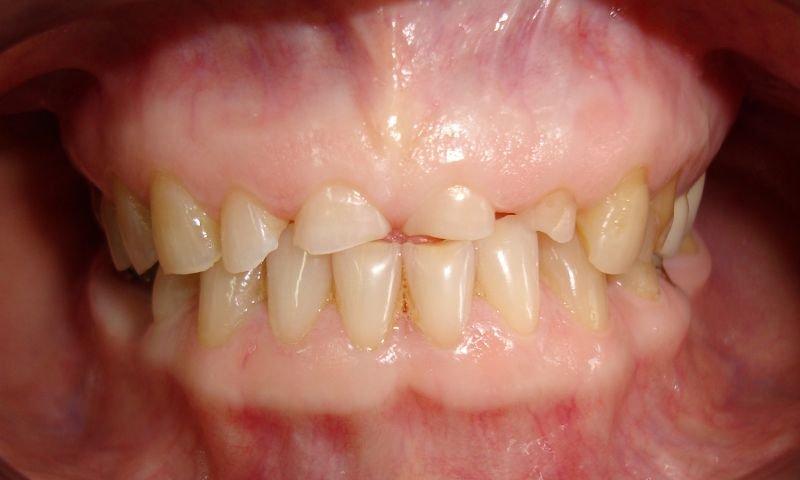 На фото зубы, утратившие значительную часть твердых тканей вследствие патологической стираемости.