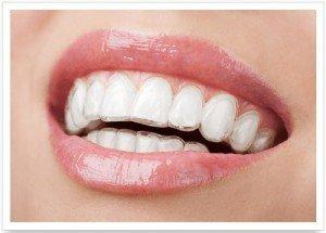 Благодаря тому, что каппу(элайнер )можно легко снять, уход за полостью рта ничем не отличается от привычной процедуры чистки зубов.