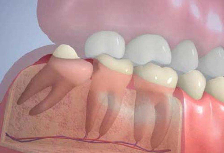Неправильное положение зуба мудрости способно спровоцировать развитие кариеса или вызвать смещение соседних зубов.