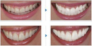 Результат отбеливания зависит от выбранного способа и индивидуальных особенностей организма. В среднем удается отбелить зубы на 3-7 тонов.