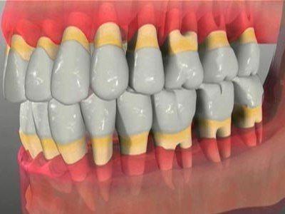 При несвоевременном лечении пародонтоза деструктивные процессы становятся необратимыми и ведут к утрате зубов.
