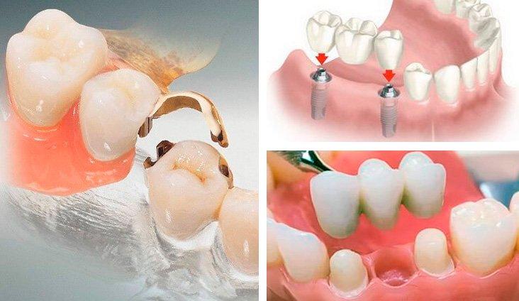 При выборе способа крепления учитывают состояние десен и зубов.