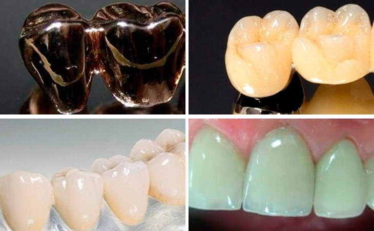 Правильный выбор материала для мостовидного протеза – залог успешного протезирования.