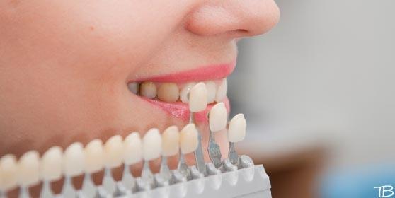 Когда виниры устанавливаются на все зубы в зоне улыбки, их цвет может быть любым. Если ставится один винир, оттенок подбирают по специальной шкале в соответствии с тоном соседних зубов.
