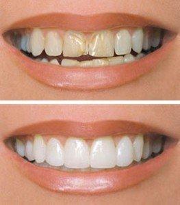 С помощью установки виниров можно решить почти любую эстетическую проблему, в том числе избавиться от желтизны зубов, сколов, небольшого искривления и т.д.