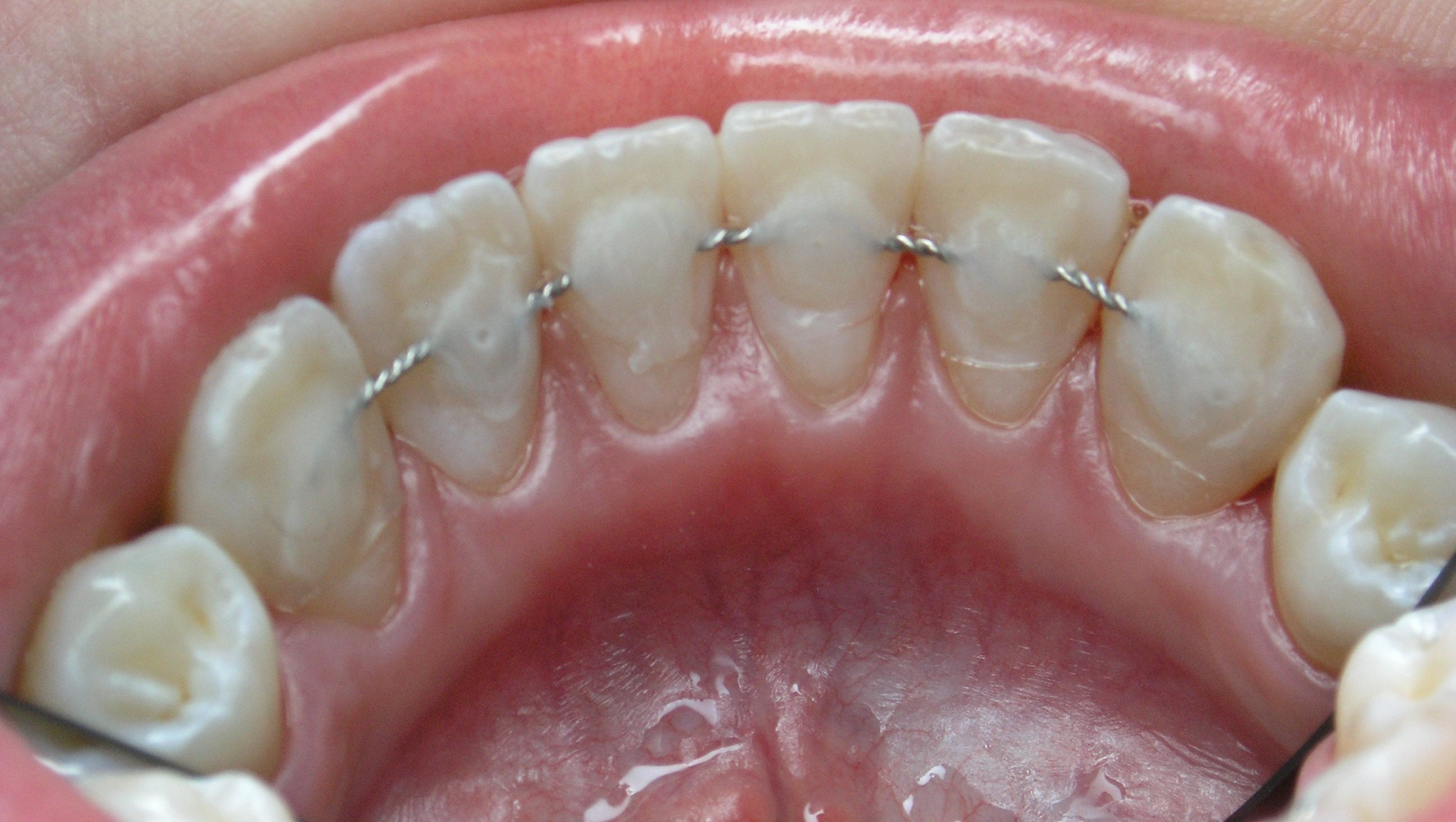 Шинирование — это стоматологическая процедура, во время которой подвижные зубы скрепляются между собой.