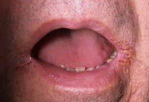 Стрептококковый ангулит характеризуется образованием гнойно-кровянистой корочки в уголке рта.