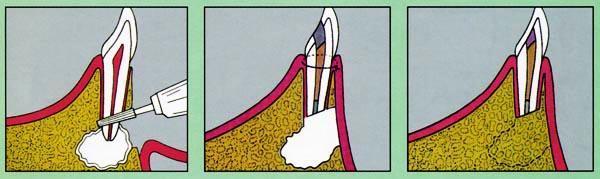 Если причина боли — плохо запломбированная апикальная часть канала, выполняют ее резекцию. Процедура позволяет вылечить зуб без съема коронки.