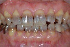 Если тетрациклиновое окрашивание зубов неравномерное, отбеливание не принесет желаемого результата. В данном случае оптимально использовать виниры.