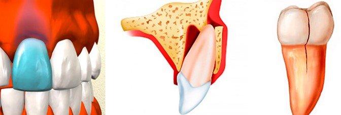 Ушибы, вывихи и переломы зубов имеют различную симптоматику.