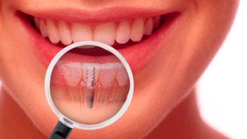 Титановый имплантат вживляется в костную ткань, а затем на него устанавливается коронка. Внешне протез ничем не отличается от естественных зубов.