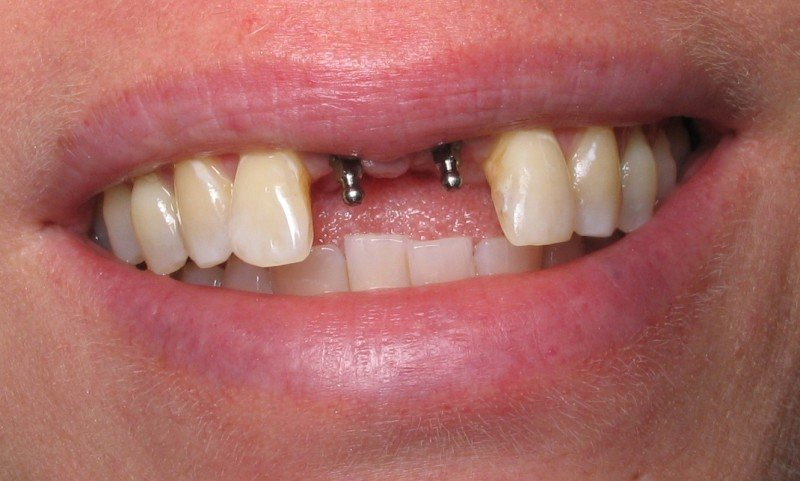 Пациенты напрасно опасаются, что во время приживления имплантата окружающим будет заметно отсутствие зуба.