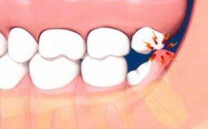 Если принято решение сохранить зуб мудрости, для снятия отека часто выполняют резекцию капюшона. Операция представляет собой удаление верхней части десны, накрывающей коронку зуба.