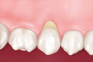 Причины возникновения и способы лечения клиновидных дефектов зубов.