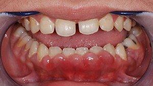При гиперплазии десен мягкие ткани разрастаются и полностью или частично скрывают под собой коронку зуба.