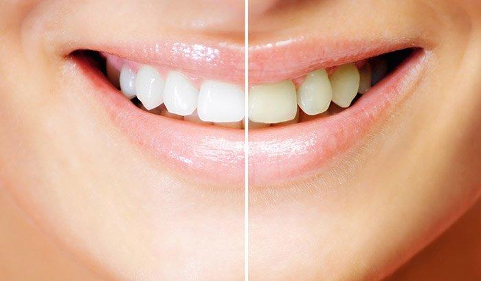 Злоупотребление отбеливанием зубов в домашних условиях может нанести вред зубам. Перед самостоятельным использованием отбеливающих составов проконсультируйтесь со стоматологом.