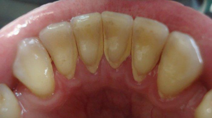 Отложения в виде зубного налета со временем превращаются в зубной камень и приводят к глубоким изменения в тканях зуба вызывая кариес.