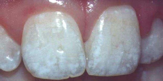 При пятнистой форме флюороза по всей коронке зуба образуются меловидные пятна. Чем ближе к центру зуба находится пятно, тем интенсивнее его цвет.