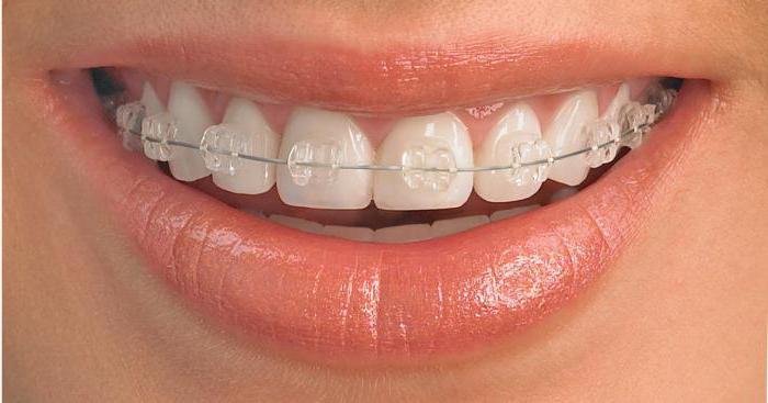 Приняв решение об исправлении дефектов зубов с помощью брекет-систем, необходимо учитывать, что процесс может занять от 6 до 36 месяцев и потребует от вас ряда ограничений.