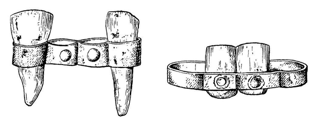 Древние зубные протезы изготавливались из дерева или кости и фиксировались во рту с помощью металлической проволоки либо полосок.