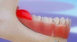Перикоронарит зуба мудрости — заболевание, при котором не стоит экспериментировать с народными средствами.