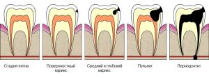 На начальной стадии развития кариес можно вылечить без препарирования. Но если заболевание запустить потеря зуба неминуема.