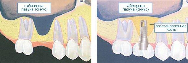 Основная цель синус-лифтинга состоит в наращивании недостающего объема костной ткани.