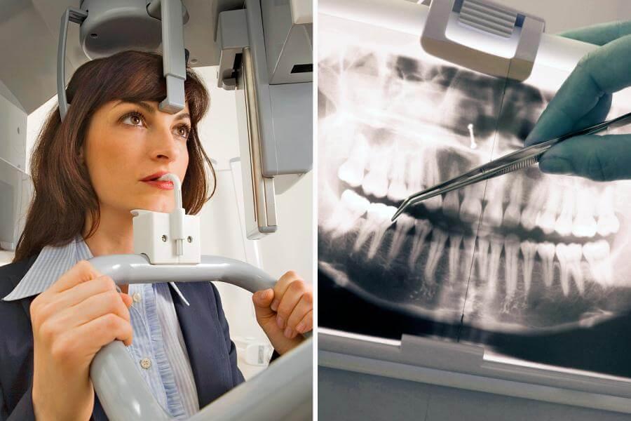 Аппаратная диагностика, выполняемая с помощью ортопантомографа, не требует много времени и не причиняет неудобств пациенту.