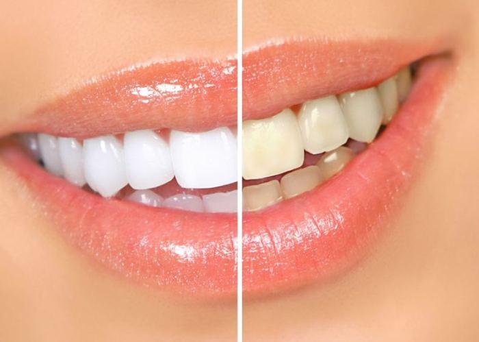 Правильно выполненное отбеливание не причиняет вреда зубам и делает улыбку ослепительной.