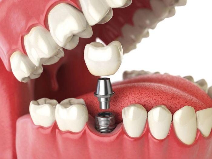 Имплантация — наиболее прогрессивная методика восстановления зубного ряда. Однако многие пациенты отказываются от лечения. Причина этого — страх. Но стоит ли бояться?