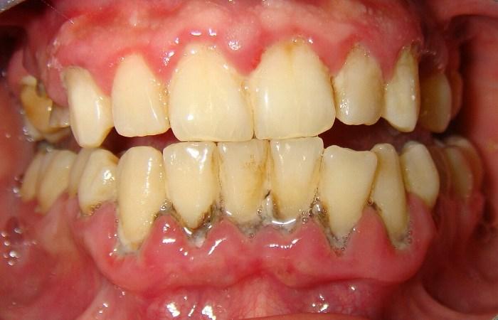 Эффективное и безопасное удаление зубного камня возможно только в клинике. «Домашние» способы в лучшем случае не дают желаемого результата, а в худшем вредят состоянию зубов.