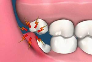 Перикоронарит развивается из-за того, что под капюшоном скапливаются частички пищи, которые служат питательной средой для бактерий.