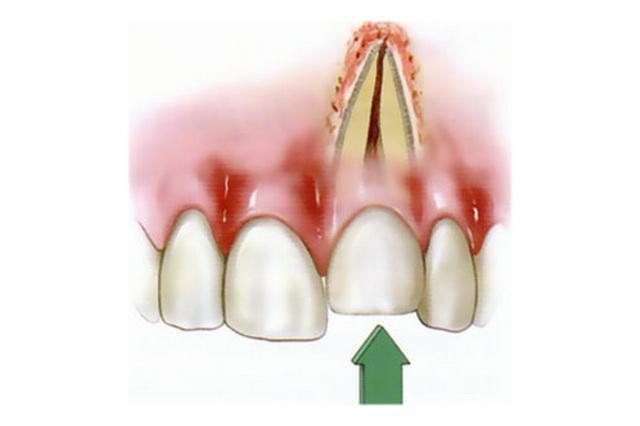 Вколоченный вывих зуба возникает в тех случаях, когда травмирующая сила действует вертикально — снизу вверх или сверху вниз.