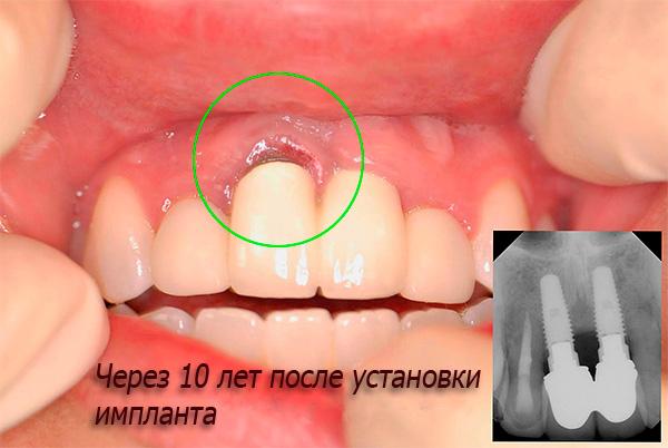 Чтобы снизить риск осложнения, необходимо регулярно посещать стоматолога и следовать его рекомендациям.